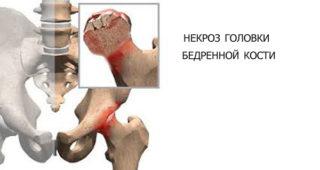 Какой эндопротез тазобедренного сустава самый лучший? Как выбрать эндопротез тазобедренного сустава?