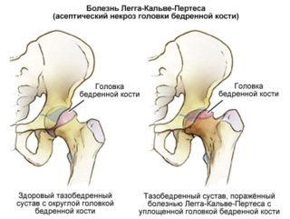 Варусная и вальгусная деформация тазобедренных суставов