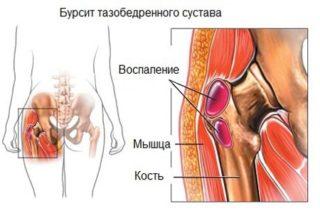 Что делать при болях в тазобедренном суставе при ходьбе, вставании и сидении, ночью? Как лечить боли в тазобедренном суставе у женщин и мужчин препаратами и народными средствами?