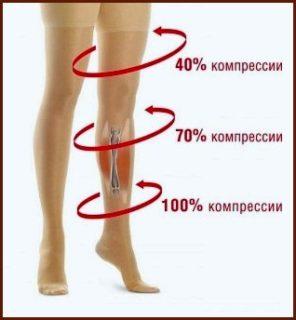 Эндопротезирование сколько по времени бинтовать