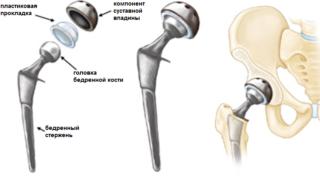 Показания и противопоказания к эндопротезированию