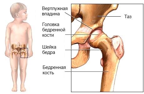 Вальгусные тазобедренные суставы трещит сустав