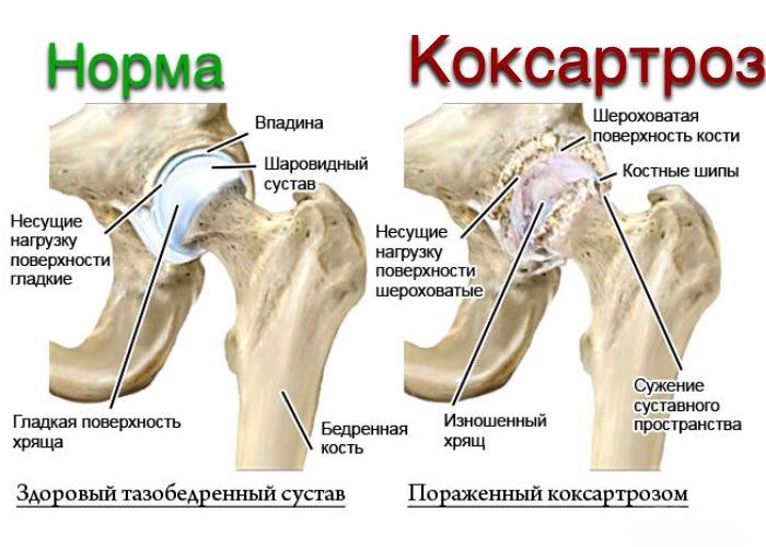 Хруст в тазобедренном суставе почему хрустит и болит