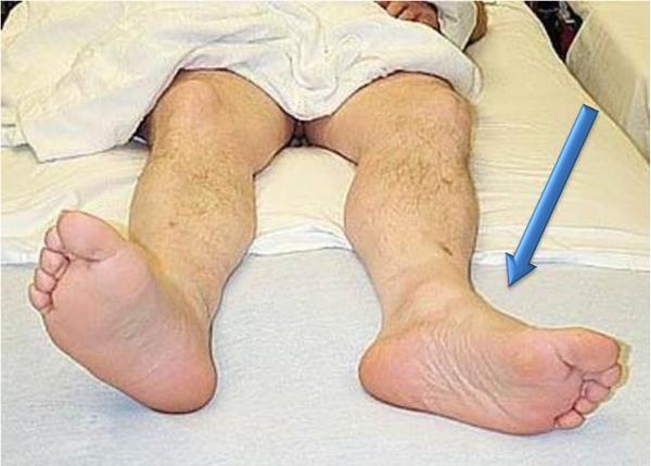 укорочение ноги после перелома бедра