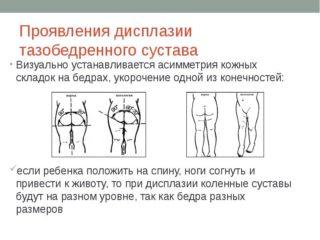 Изображение - Ядра тазобедренных суставов у детей img34-320x240