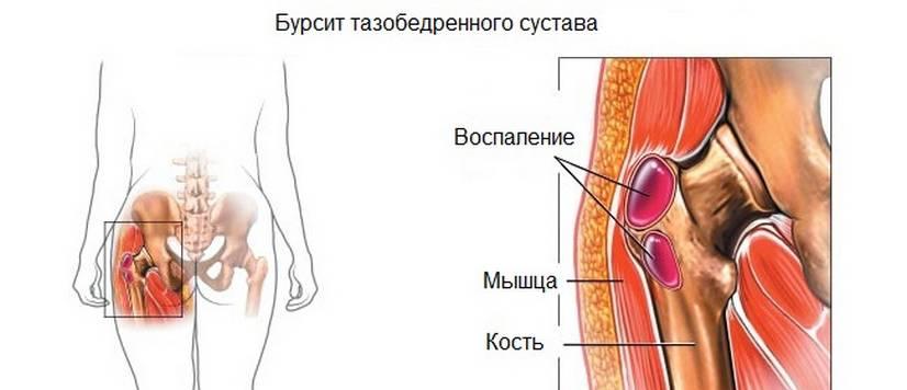 Ноющая боль в состоянии покоя в тазобедренном суставе нарост вокруг сустава на пальце