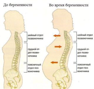 Причины боли в тазобедренном суставе при подъеме по лестнице