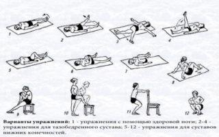 Перелом шейки бедра у пожилых людей: симптомы и лечение – Ваш ортопед