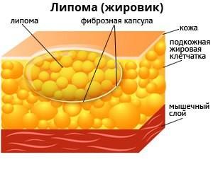 На внутренней стороне бедра появилась шишка причины симптомы диагностика и лечение