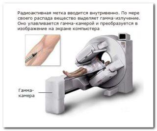 Изображение - Формирование ложного сустава при переломе шейки бедра metod_skanirovaniya_kostey-320x267