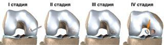 Рассекающий остеохондрит таранной кости