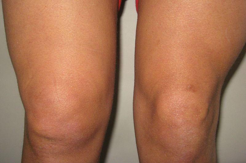 Боли в суставе бедра шишка отек ноги после замены сустава