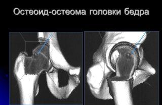 Изображение - Остеома тазобедренного сустава osteoid-osteoma-golovki-bedra-320x208