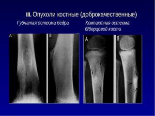 Изображение - Остеома тазобедренного сустава osteomy-bedra-320x240