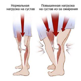 Диета при заболеваниях коленных и тазобедренных суставов принципы здорового питания