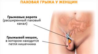 Болит лобковая кость причины диагностика и методы лечения
