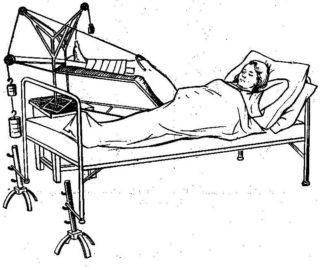 Перелом лобковой кости - лечение реабилитация и последствия