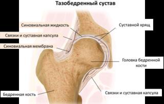 трещина бедренной кости симптомы
