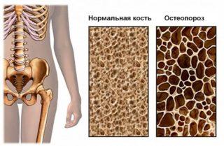 Как лечить трещину в бедренной кости симптомы первая помощь методы терапии и народная медицина