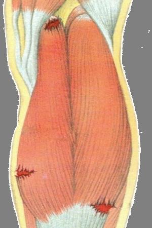 Растяжение и разрыв мышц бедра: симптомы и лечение в домашних условиях, надрыв сухожилия четырехглавой мышцы бедра