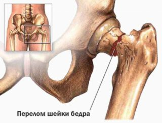 Изображение - После физической нагрузки болит тазобедренный сустав pri-progressiruyuschem-razrushenii-kostey-povyshae-320x242