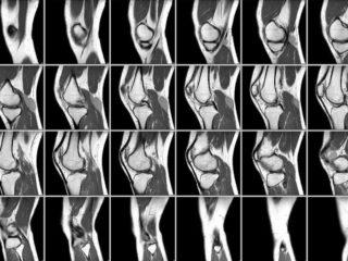 Подготовка к артроскопии - эндоскопии коленного сустава