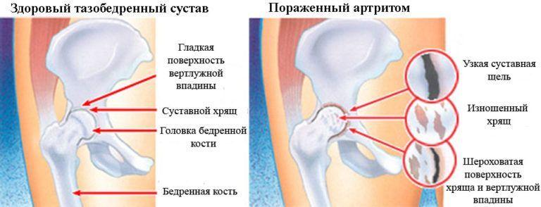 6 месяцев хруст в тазобедреном суставе щелкает сустав большого пальца на ноге