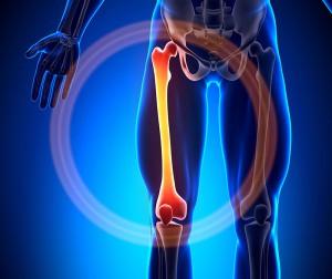 Причины лечение и фото остеомы бедренной кости