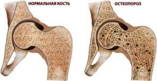 Изображение - Формирование ложного сустава при переломе шейки бедра simptomy-osteoporoza-u-pozhilyh-zhenshhin-320x166