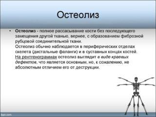 Осложнения эндопротезирования тазобедренного сустава