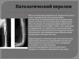 Метастазы в тазобедренном суставе на снимке