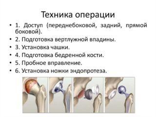Разрушение хряща тазобедренного сустава - Все про суставы
