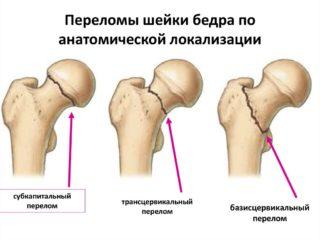 Реабилитация после перелома шейки бедра правила и упражнения