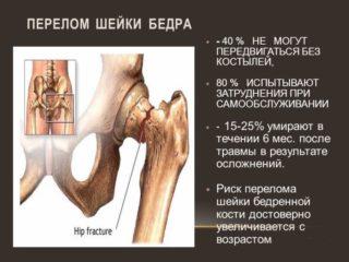 Эндопротезирование тазобедренного сустава: показания, проведение, противопоказания и возможные осложнения. Реабилитация после замены сустава в Москве