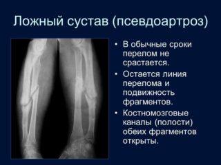 Изображение - Формирование ложного сустава при переломе шейки бедра slide_78-320x240