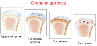 Изображение - Крестцово подвздошный сустав движения sustav1-320x153