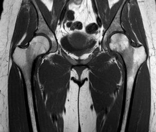 Хруст в тазобедренном суставе у взрослых и детей: причины, тревожные симптомы, диагностика и лечение