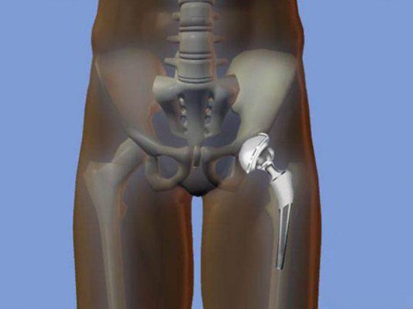 Осложнения при тотальном эндопротезировании тбс