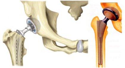 Замена коленного сустава противопоказания - Лечение Суставов