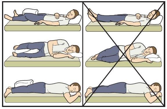 Как спать после эндопротезирования тазобедренного сустава женщин суставы