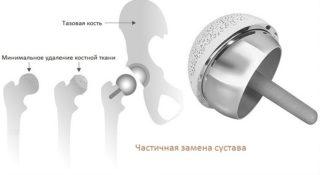 Тотальное эндопротезирование тазобедренного сустава: ход операции