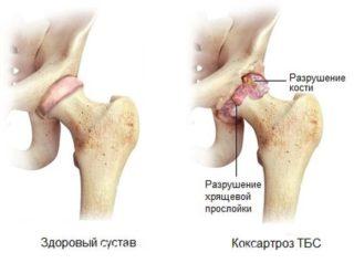 Изображение - Силовая тренировка ног при коксартрозе тазобедренного сустава %D0%9A%D0%BE%D0%BA%D1%81%D0%B0%D1%80%D1%82%D0%BE%D1%80%D0%BE%D0%B7-320x238
