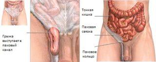 Боли в подвздошной области слева у женщин