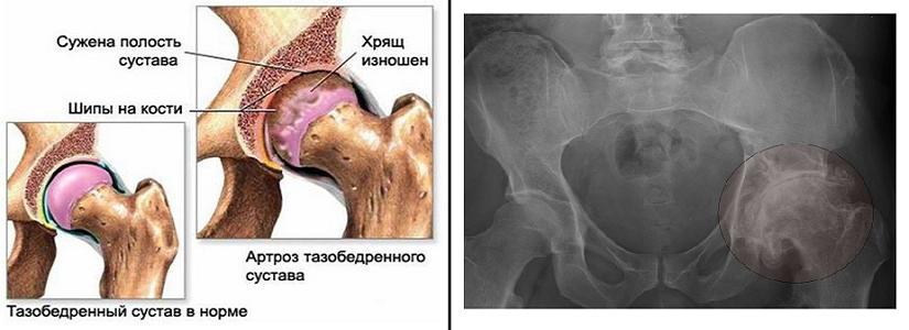 Что такое артроз локтевого сустава и как его лечат
