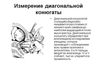 Манипуляции по акушерству и гинекологии