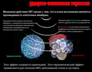 Изображение - Ударно волновая терапия при артрозе тазобедренного сустава 1383228824_uvt-320x250