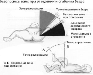 Реабилитация дисплазия тазобедренного сустава у детей thumbnail