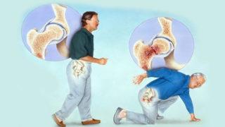 Остеопороз тазобедренного сустава как предотвратить опасные последствия