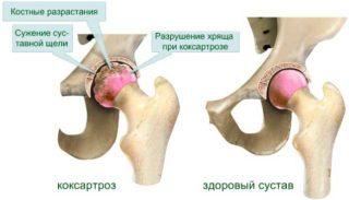 Спазм мышц тазового дна у мужчин и женщин: причины, симптомы, лечение и профилактика