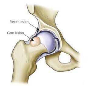 Импинджмент синдром тазобедренного сустава - Береги спину!